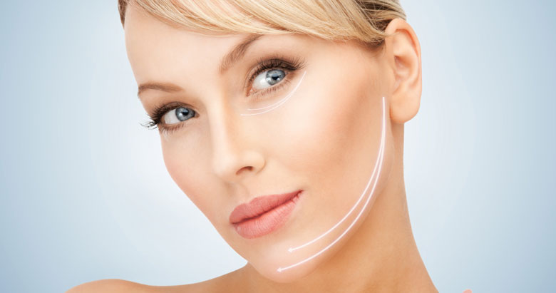 Flacidez facial - Thermage